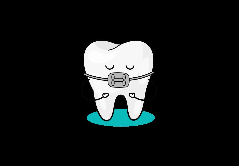 Beitragsbild: Zahnfehlstellung