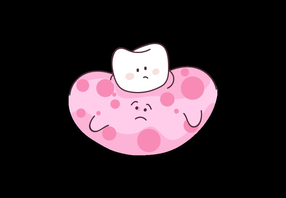 Beitragsbild: Zahnfleischerkrankungen